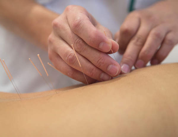 Go to Acupuncture: An Introduction